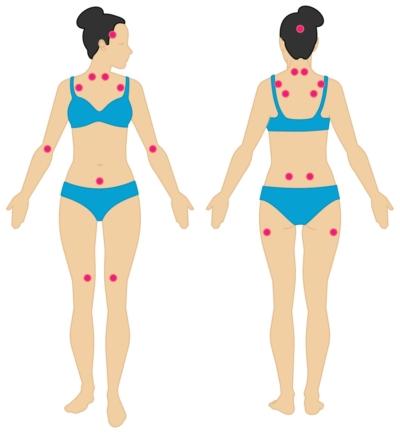 Puntos sensibles de dolor en la fibromialgia